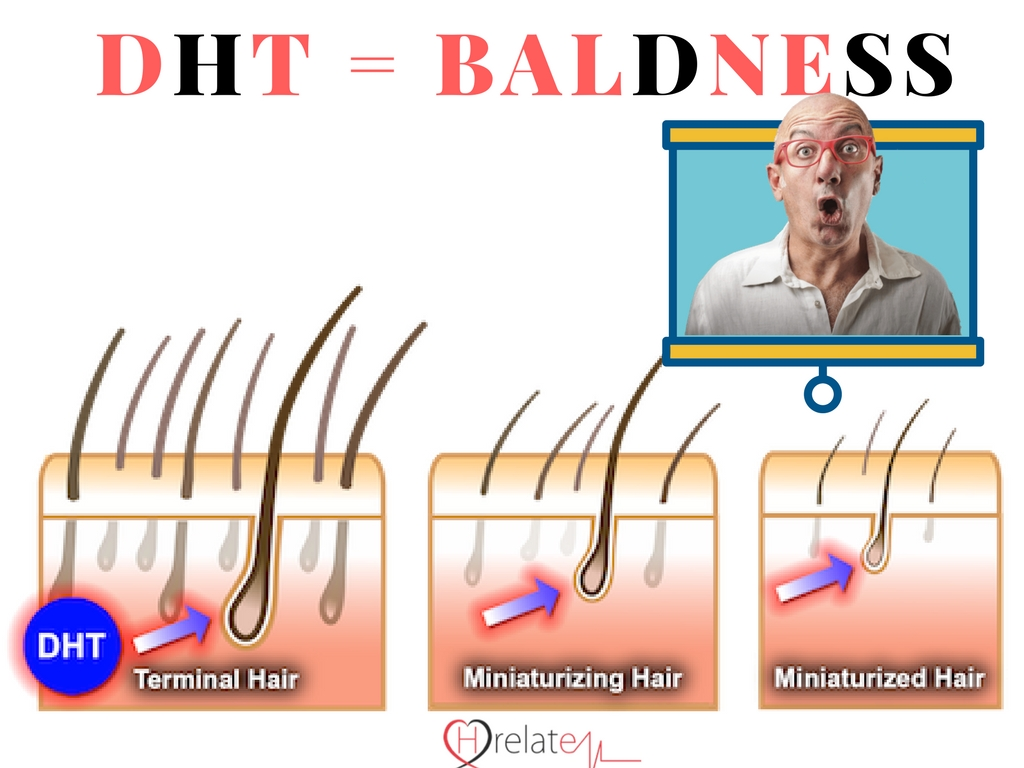 How Does DHT Responsible For Baldness (Androgenic Alopecia): Part 1