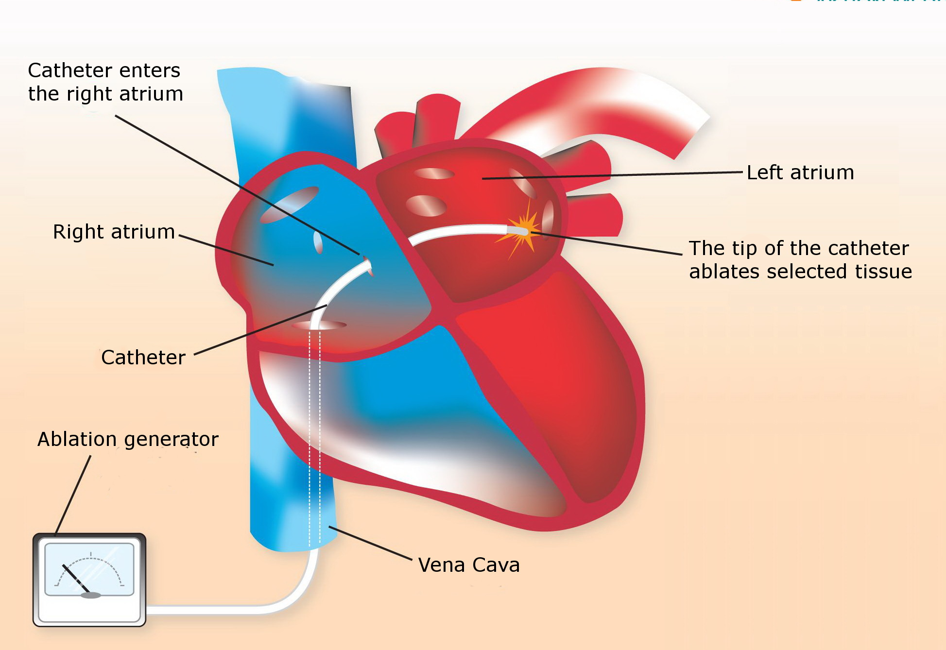 How-To-Prepare-For-Catheter-Ablation-