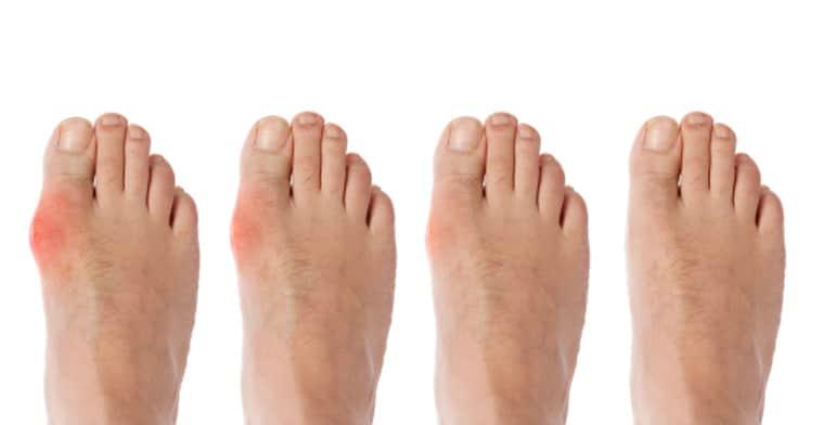 10.-Psoriatic-Arthritis-