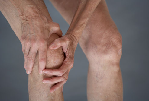 3.-Osteoarthritis
