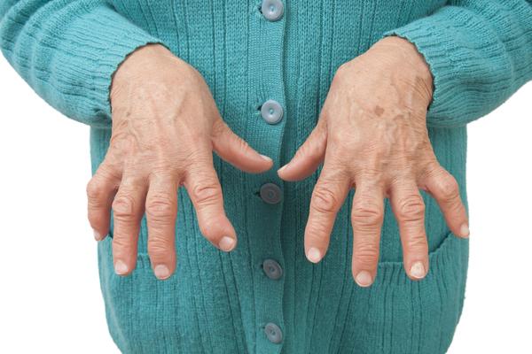 4.-Rheumatoid-Arthritis