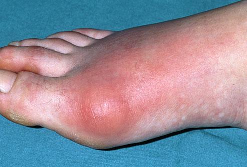 5.-Gout