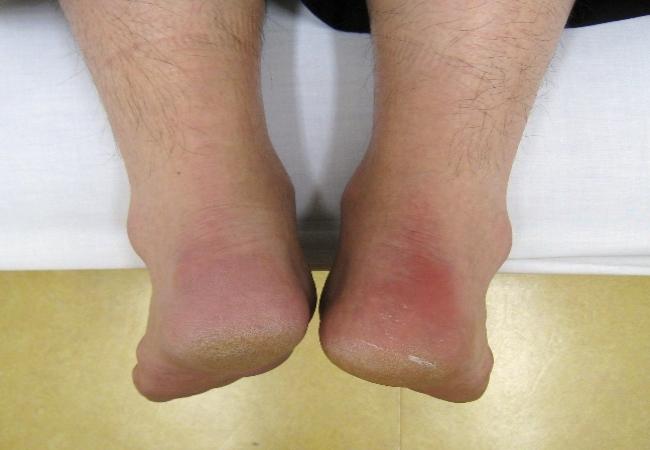7.-Inflammatory-Bowel-disease--Enteropathic-Arthritis-