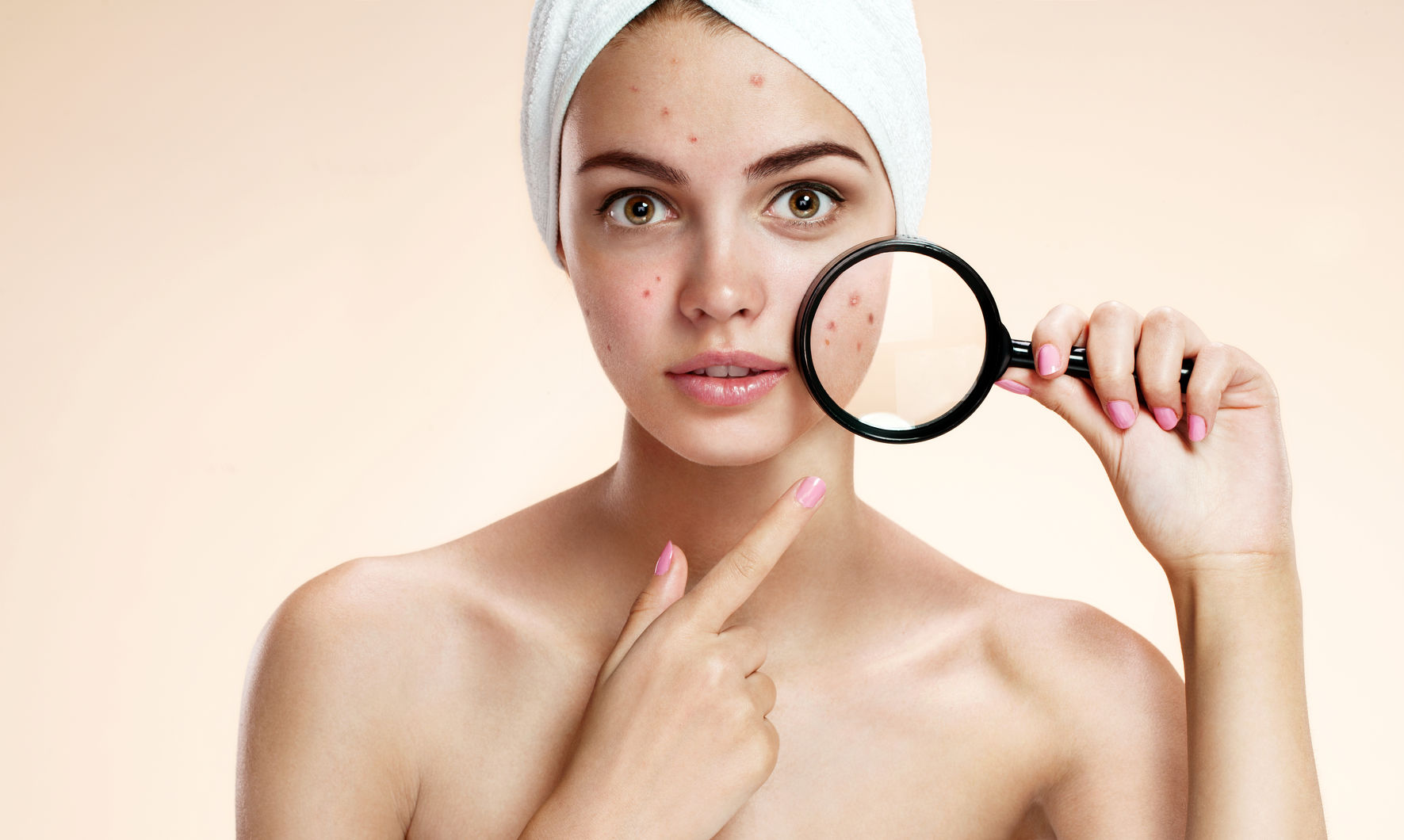 What Is Acne? (Causes, Symptoms, Preventions & Treatments Included)
