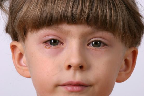 1.-Eyelid-Inflammation-Or-Blepharitis