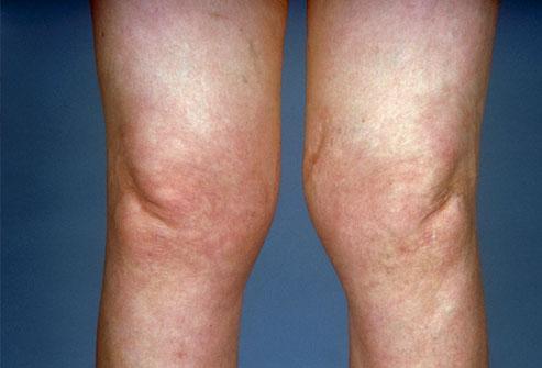 11.-Lyme-Disease