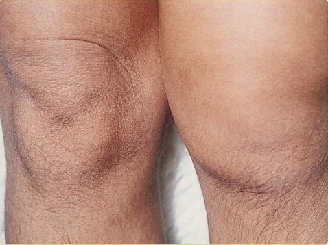 13.-Reactive-Arthritis--Reiter-s-Syndrome-