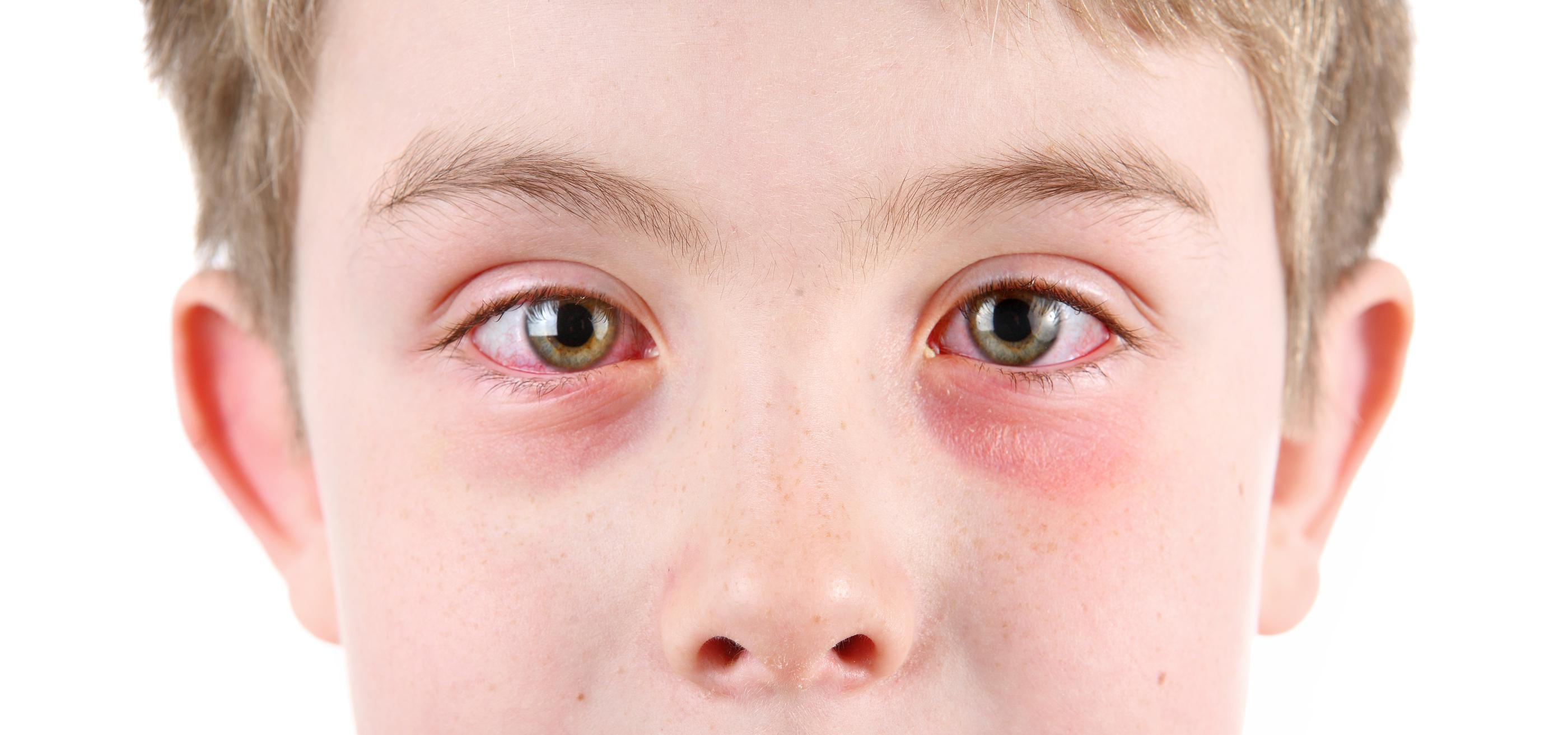 5.-Food--Animal-Or-Environmental-Allergies--Allergic-Conjunctivitis-