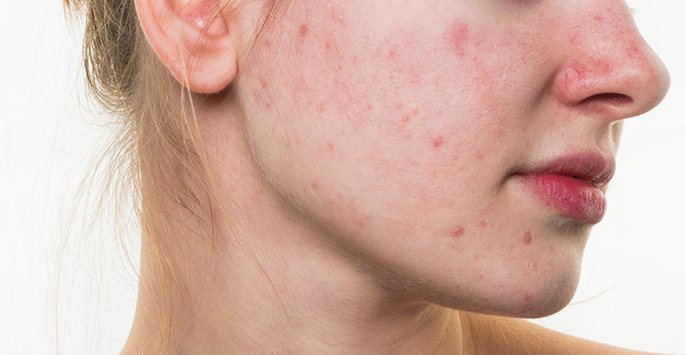 Signs---Symptoms-In-Different-Forms-Of-Rosacea