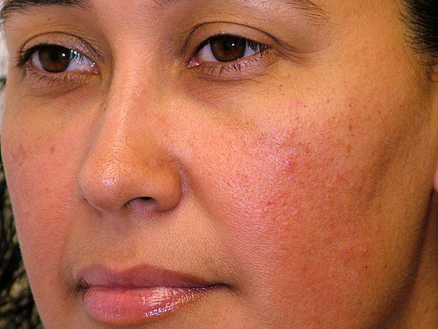 Subtypes-Of-Rosacea