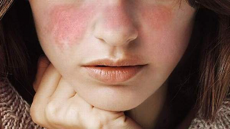 Lupus: Causes, Symptoms, Diagnosis & Treatment
