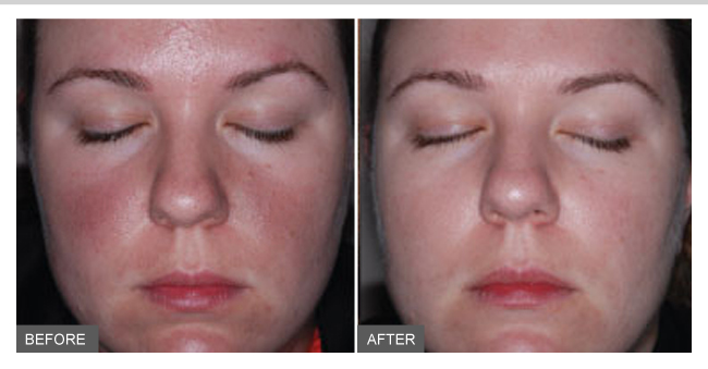 Rosacea Subtypes Symptoms Causes Diagnosis Amp Treatment