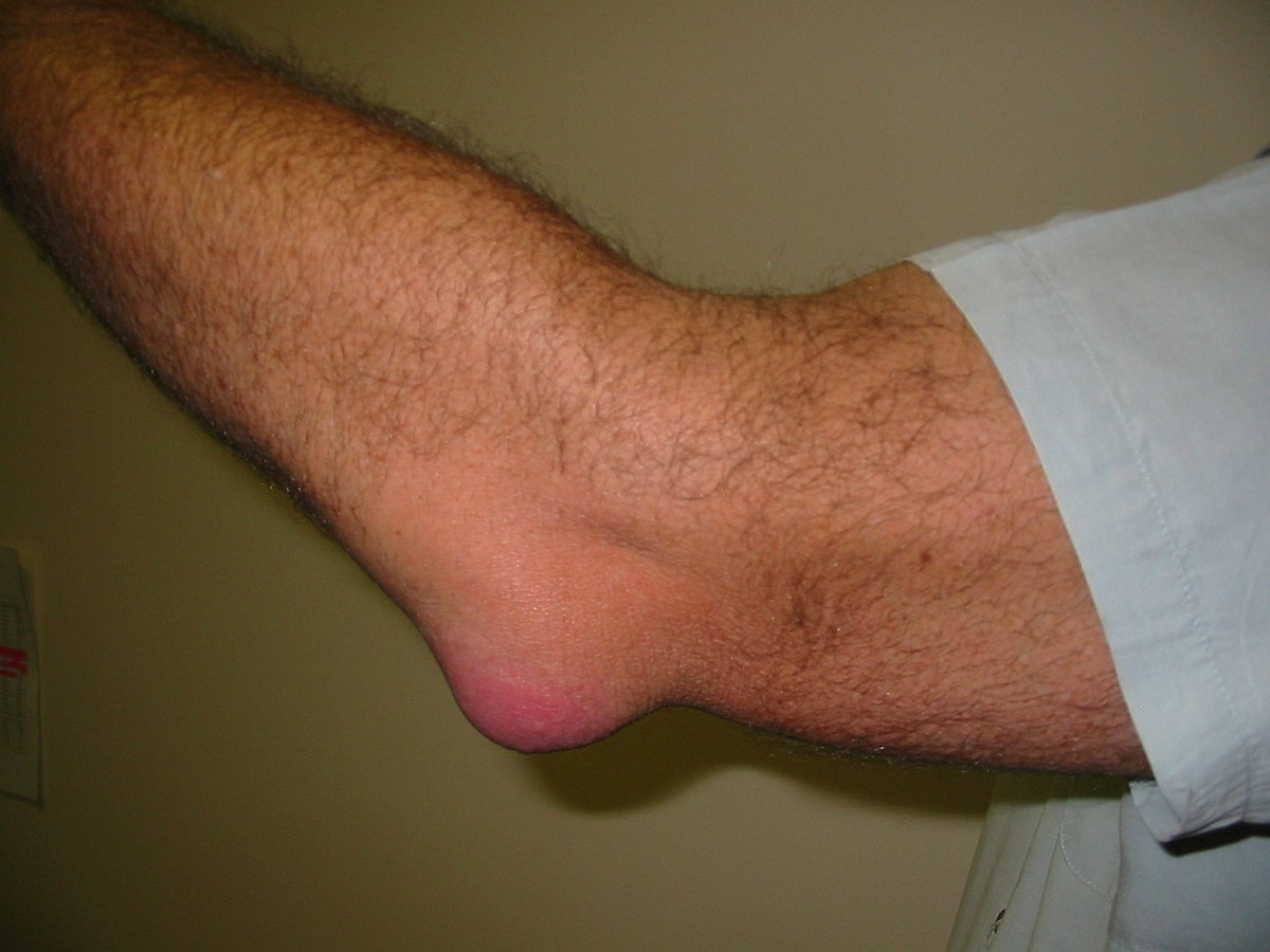 Bursitis Causes, Symptoms, Diagnosis & Treatment