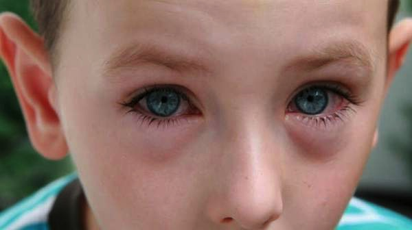 Diagnosis-of-Allergic-Conjunctivitis