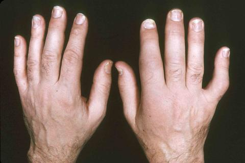 Different-Types-Of-Psoriatic-Arthritis