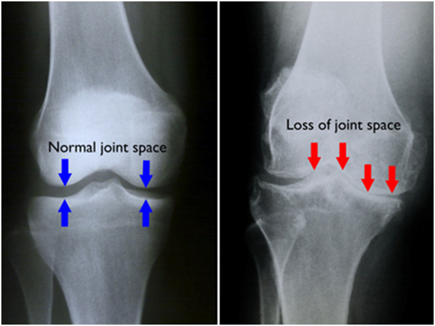 How-To-Diagnose-If-You-Have-Arthritis-Of-The-Knee-