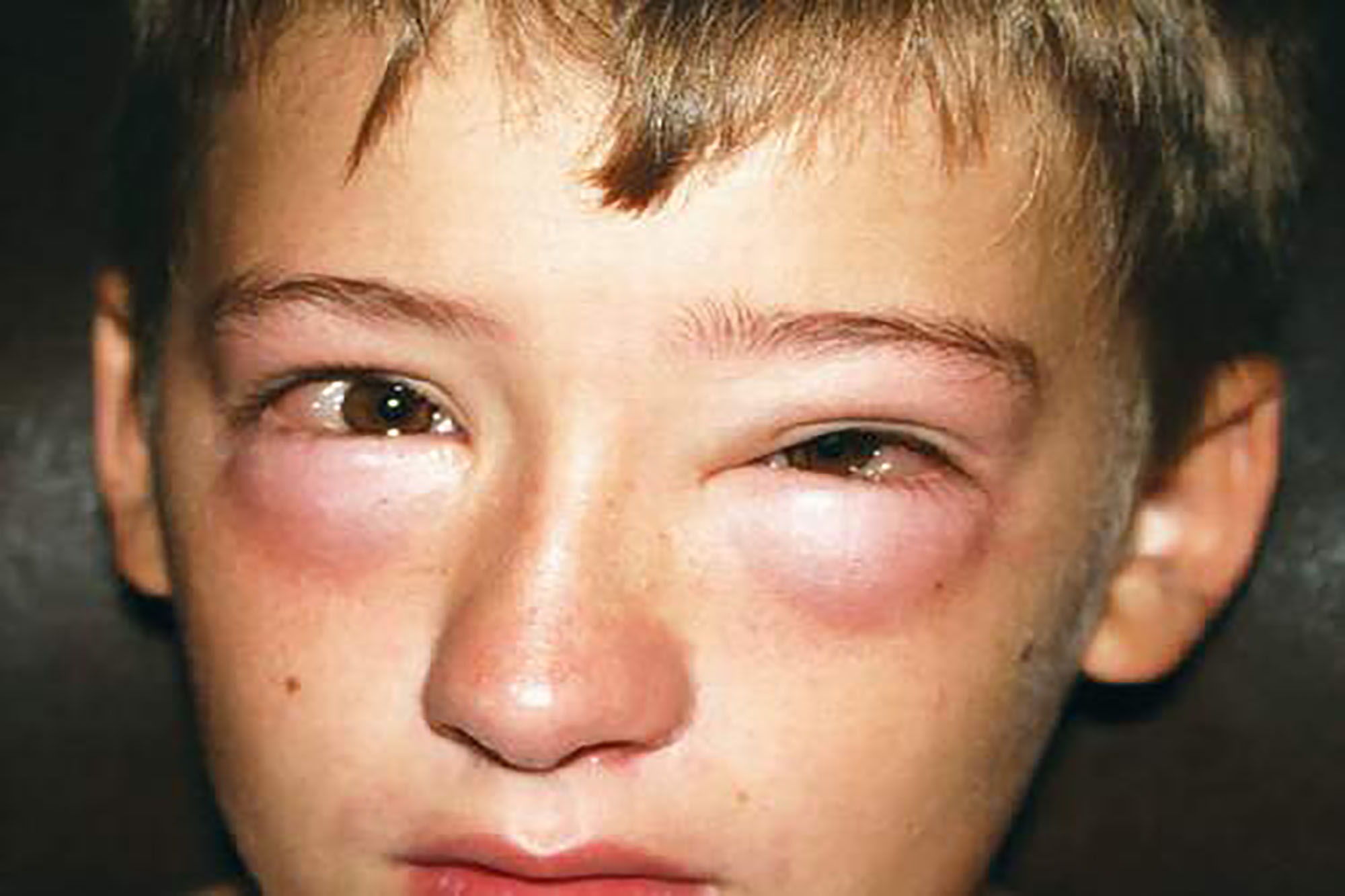 Signs---Symptoms-Of-Anaphylactic-Reaction-
