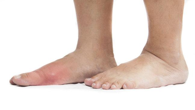 Symptoms---Signs-of-Gout