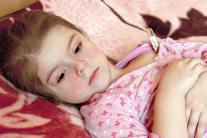 Diagnosis-of-Erythema-Infectiosum