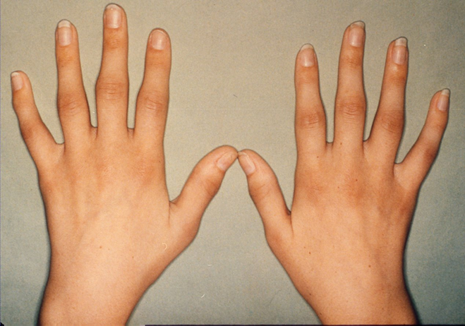 Different-Forms-of-Polyarthritis
