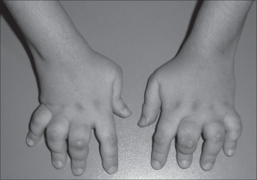 Juvenile Idiopathic Arthritis (JIA) Signs, Subtypes, Cause, Diagnosis & Treatment