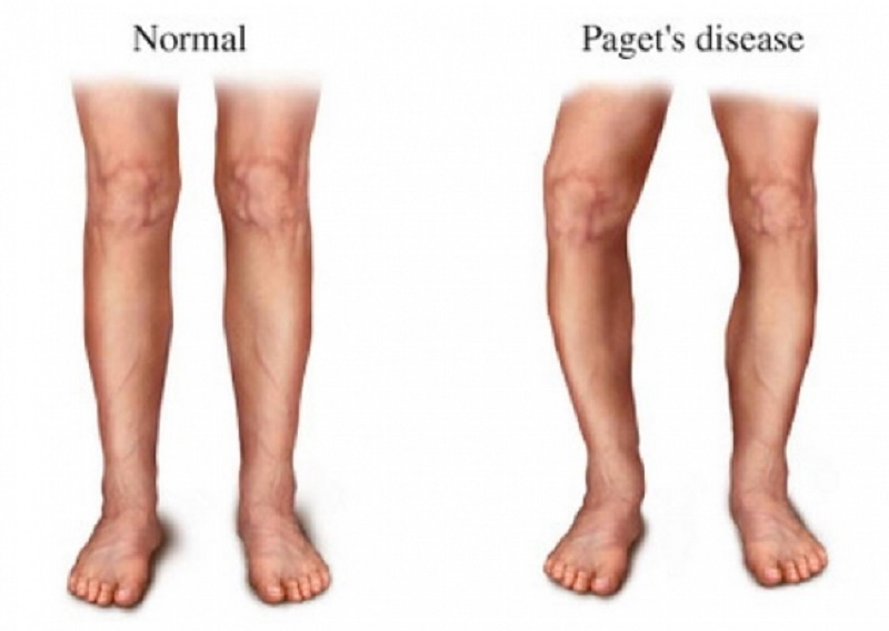 Risk-Factors-of-Paget-s-Disease-of-Bone