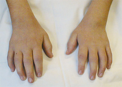Types-Of-Oligoarthritis-