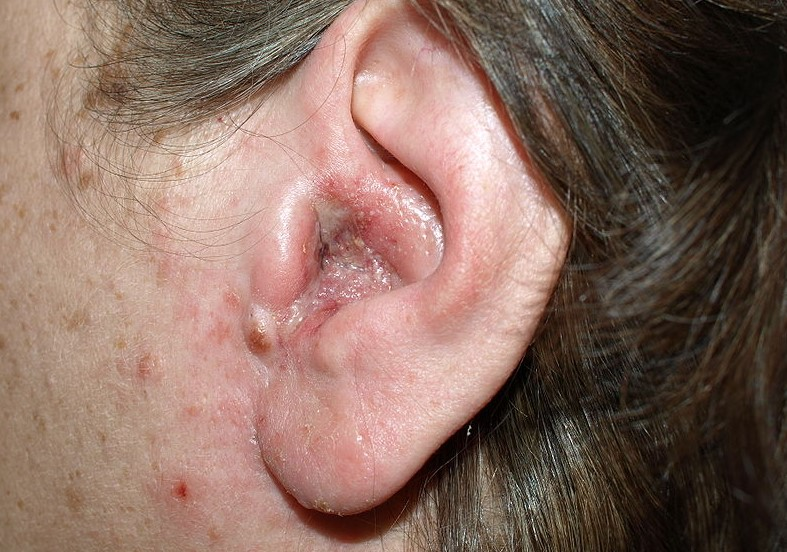 ear infection otitis externa essay A bacterial skin infection of the outer ear is the most common cause of otitis externa it can also be caused by a fungal or viral infection a number of changes within the outer ear make it easier for these microorganisms to grow resulting in an outer ear infection.