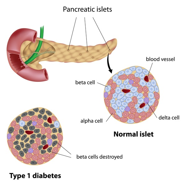 Causes-Of-Type-1-Diabetes