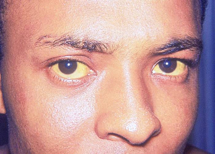 Signs---Symptoms-7