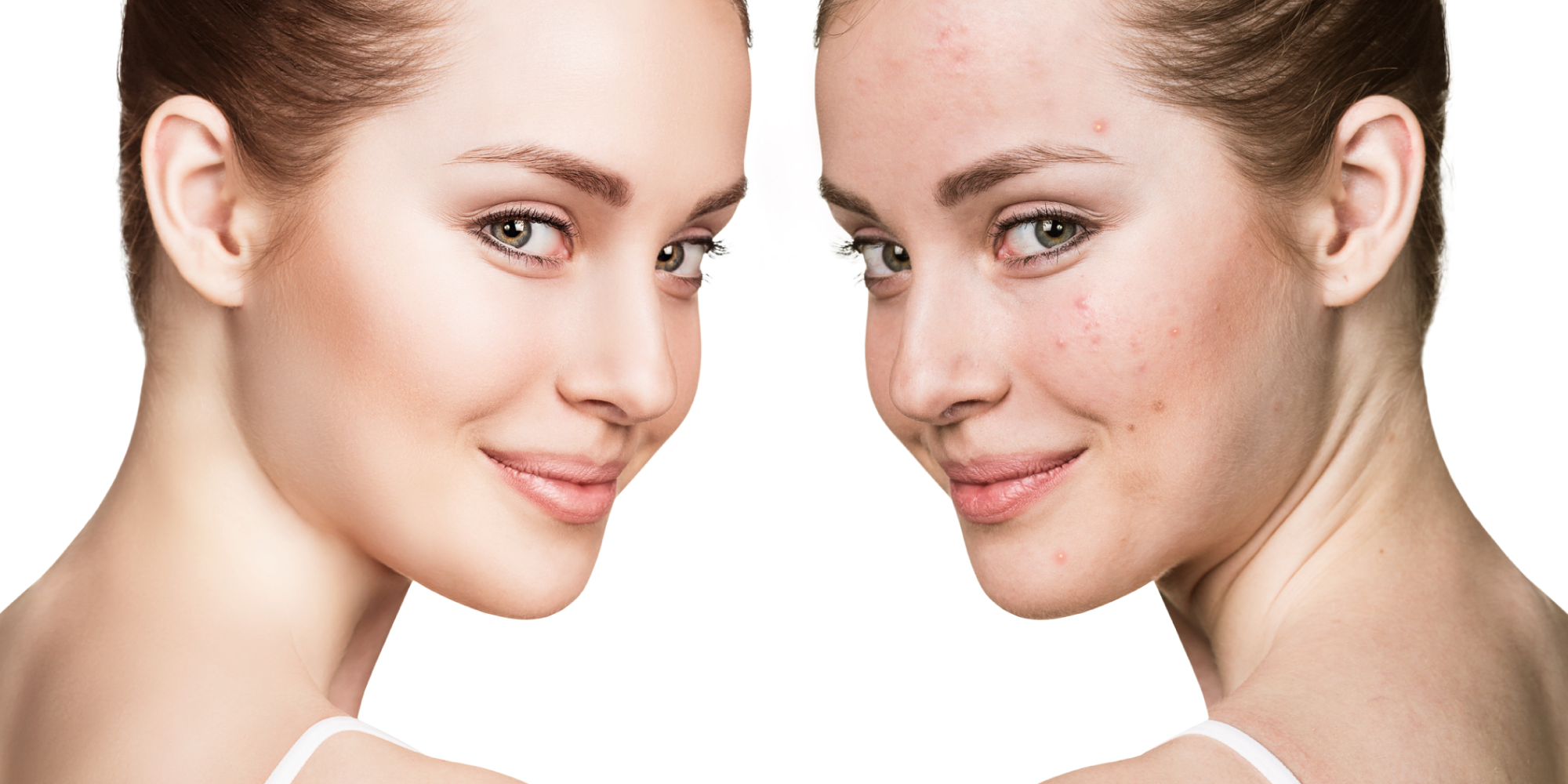 4 Scientifically Proven Forms Of Anti-Androgens That Keep Acne At Bay