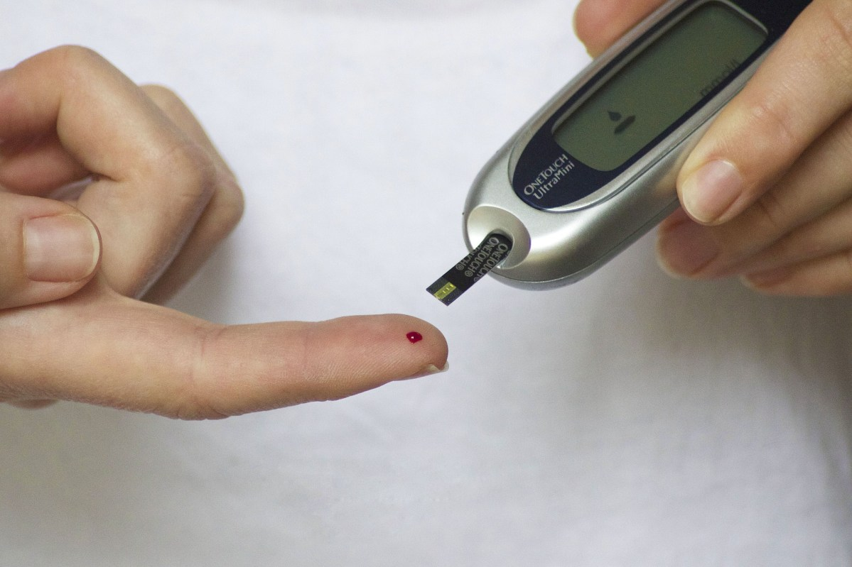 How-Diabetes-Mellitus-Type-2-Is-Diagnosed