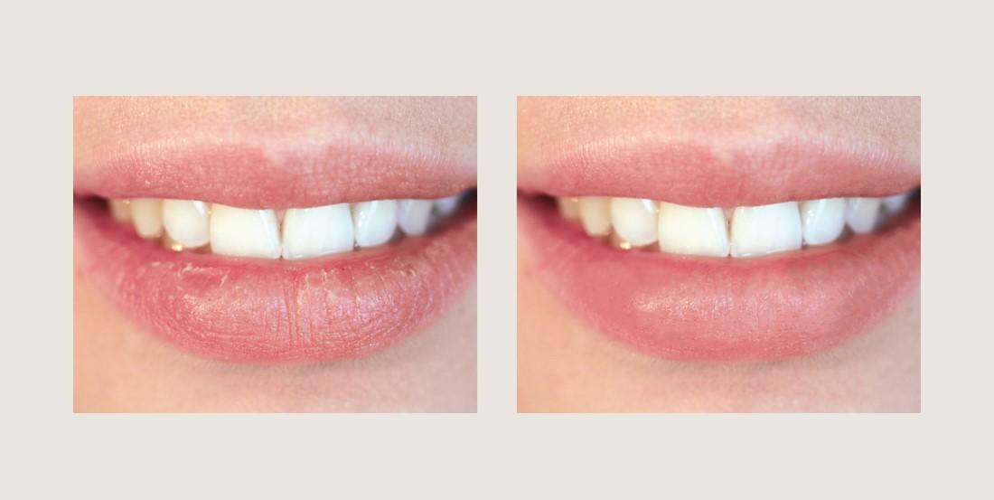 5.-Treat-Chapped-Lips