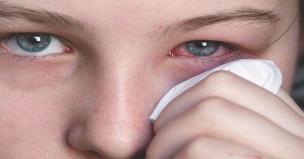 How To Know If Your Red, Itchy Eyes Are Because Of Allergy Or Infection?