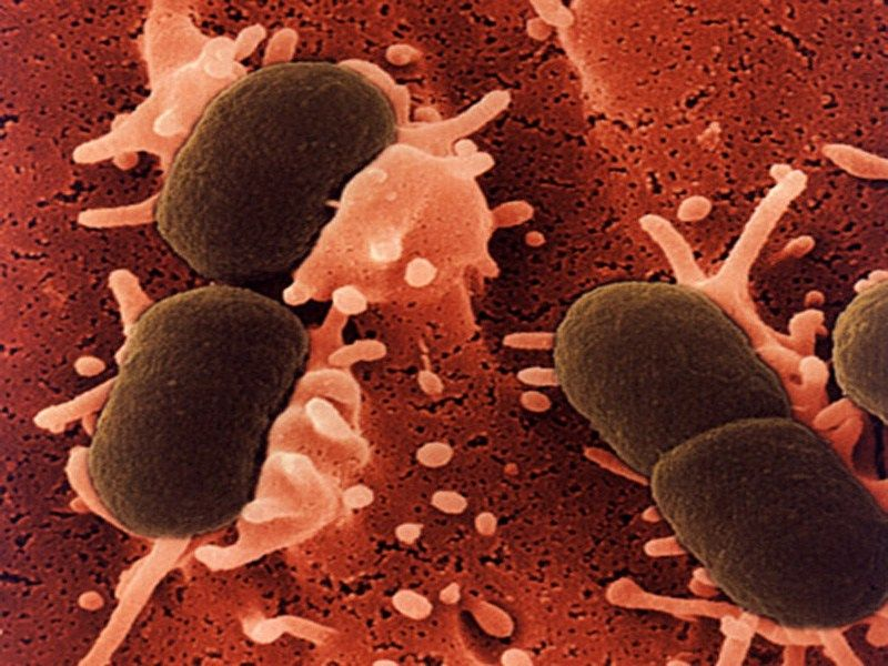 E. Coli (Escherichia Coli) Infection Causes, Symptoms, Diagnosis & Treatment