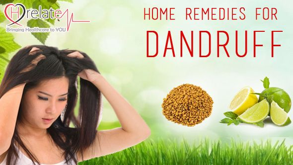 Home Remedies for Dandruff: Key to a Flake - Free Scalp