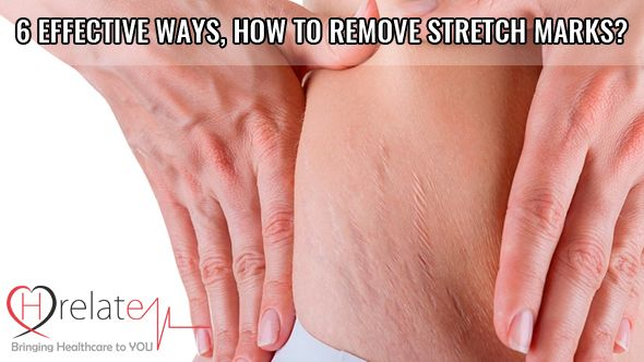 6 Effective Ways On How to Remove Stretch Marks?