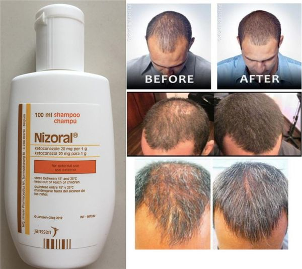 Ketoconazole Shampoo: A Miraculous Anti-dandruff And Hair-Loss Remedy