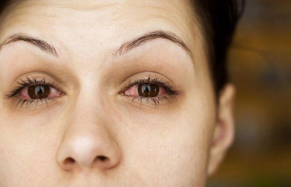11 Best Treatments For Eye Allergy Relief