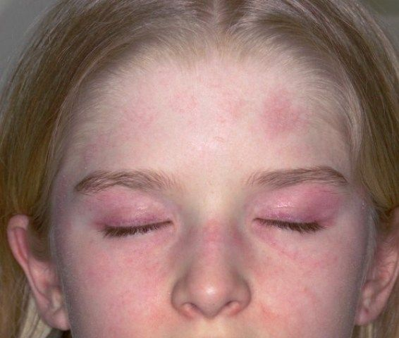 Juvenile Dermatomyositis (JDM) Symptoms, Causes, Diagnosis & Treatment