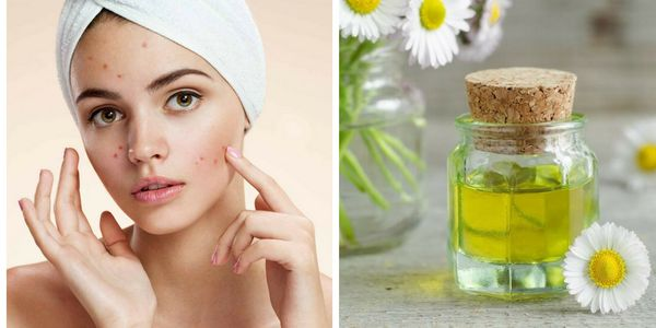 Top 20 Essential Oils For Treating Acne