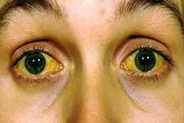 Jaundice (Icterus) Types, Causes, Symptoms, Diagnosis, Treatment & Prevention
