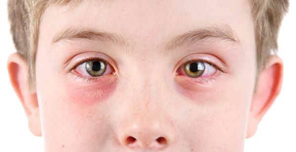 PinkEye(Conjunctivitis): Signs, Causes, Diagnosis, Treatment & Prevention