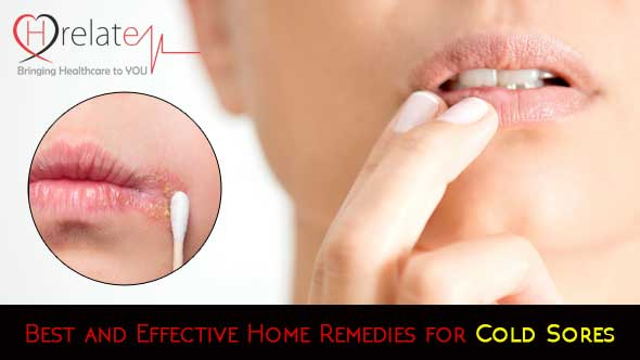 Best and Effective Home Remedies for Cold Sores